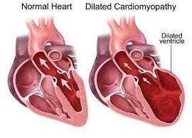 cardiomiopatie5